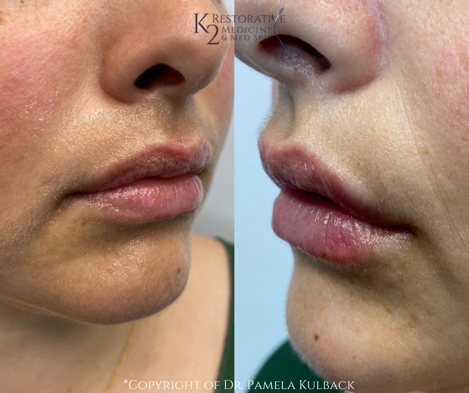 Before and after Lip Enhancement via PDO Threads by Dr. Pamela Kulback
