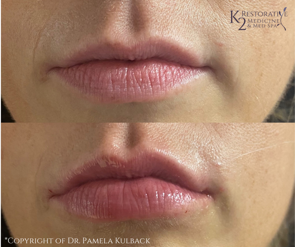 Before and immediately after PDO Threads for Lips by Dr. Pamela Kulback