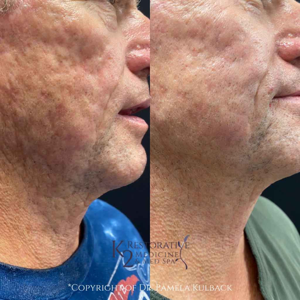 Patient Before and after Microneedling RF and CoolPeel™
