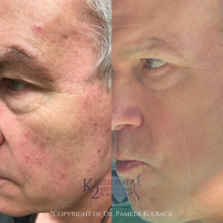 Before and after IPL and One CoolPeel™ Laser Treatments to reduce redness, even out skin tone, minimize broken blood vessels, and tighten skin.