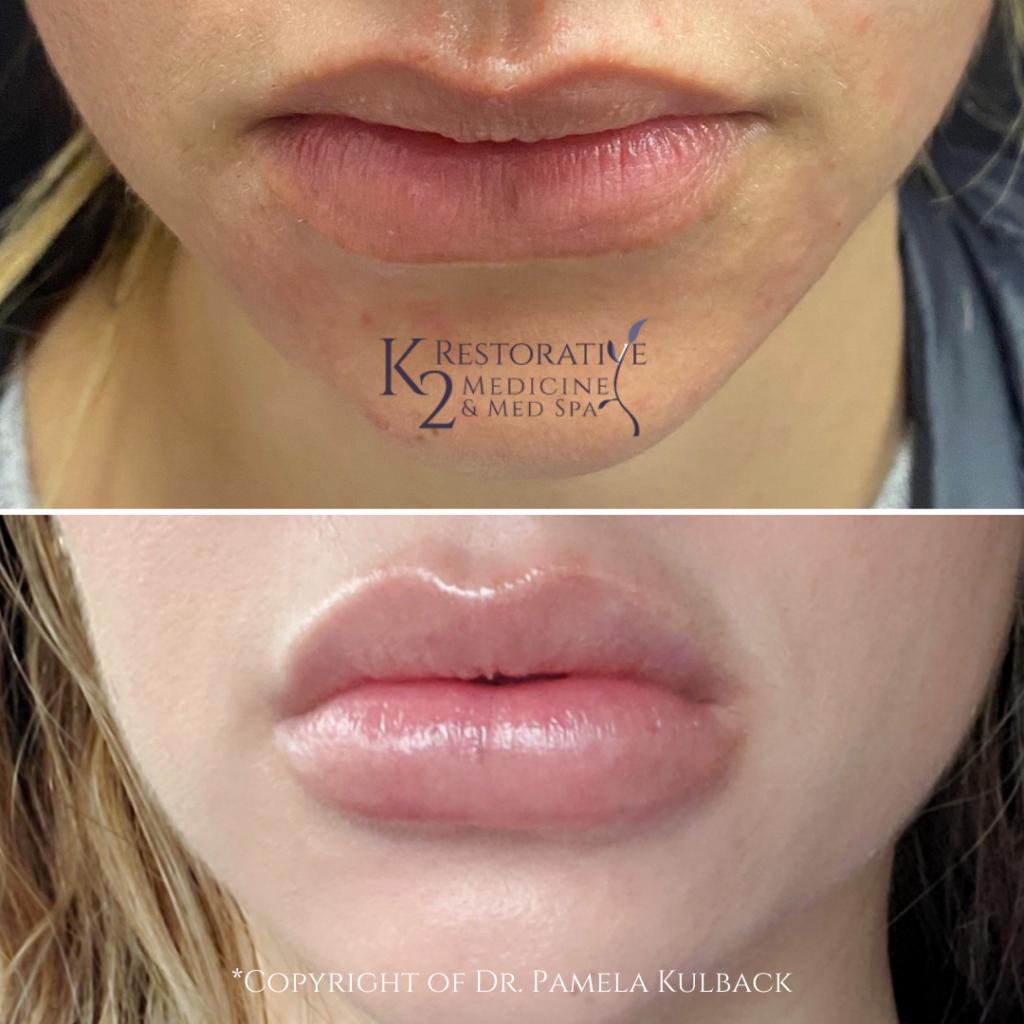 Before and after Kysse Lip Filler