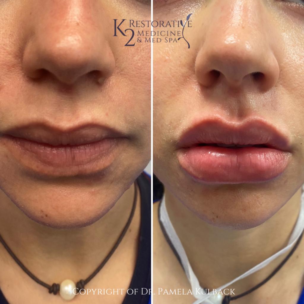 Front Side View Before and After Restylane Kysse Lip Filler offered at K2 Restorative Medicine