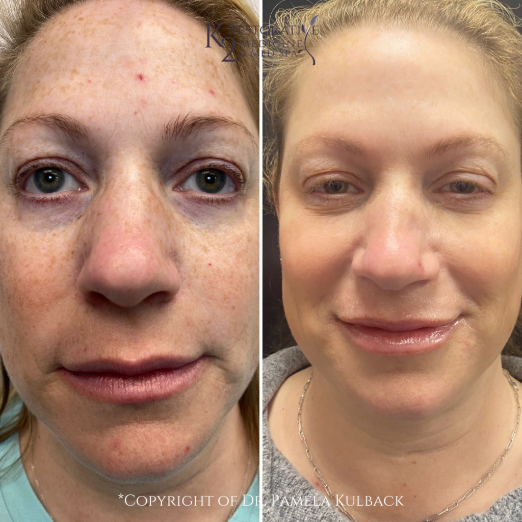 Before and after 6-months - 2 IPL Treatments, PDO Thread-Lift of the Mid-Face, 2 syringes of filler, and Kysse lip filler. Performed by Dr. Pamela Kulback