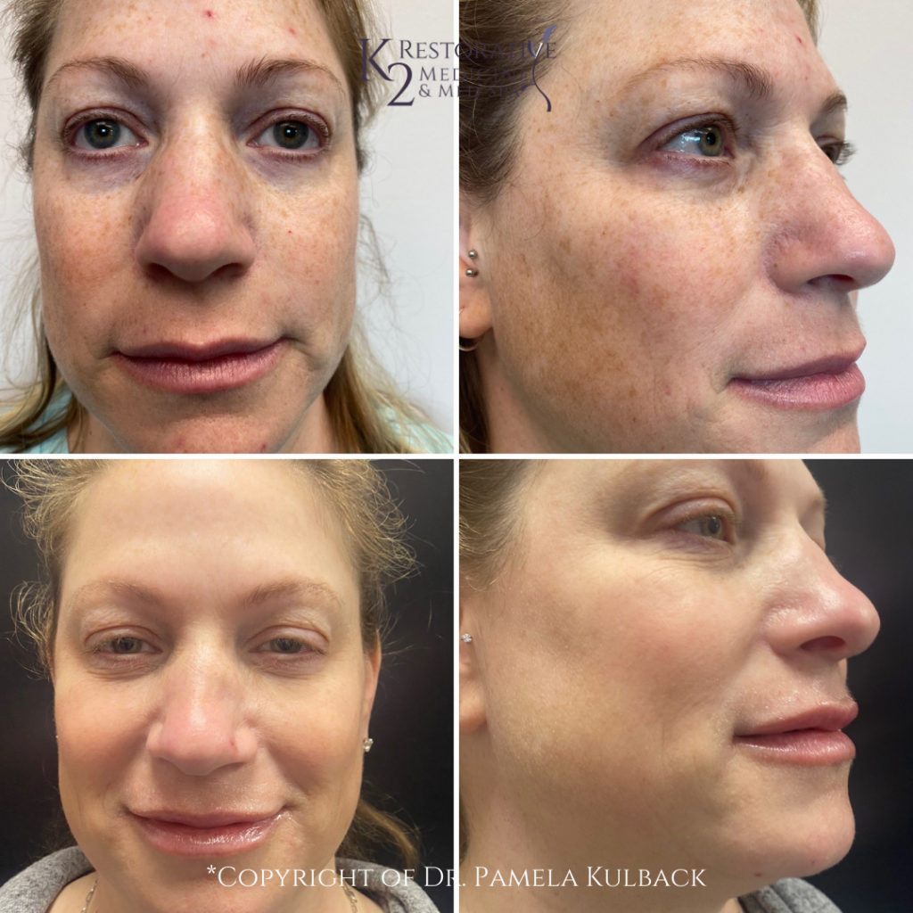 Before and after 6-months - 2 IPL Treatments, PDO Thread-Lift of the Mid-Face, 2 syringes of filler, and Kysse lip filler.