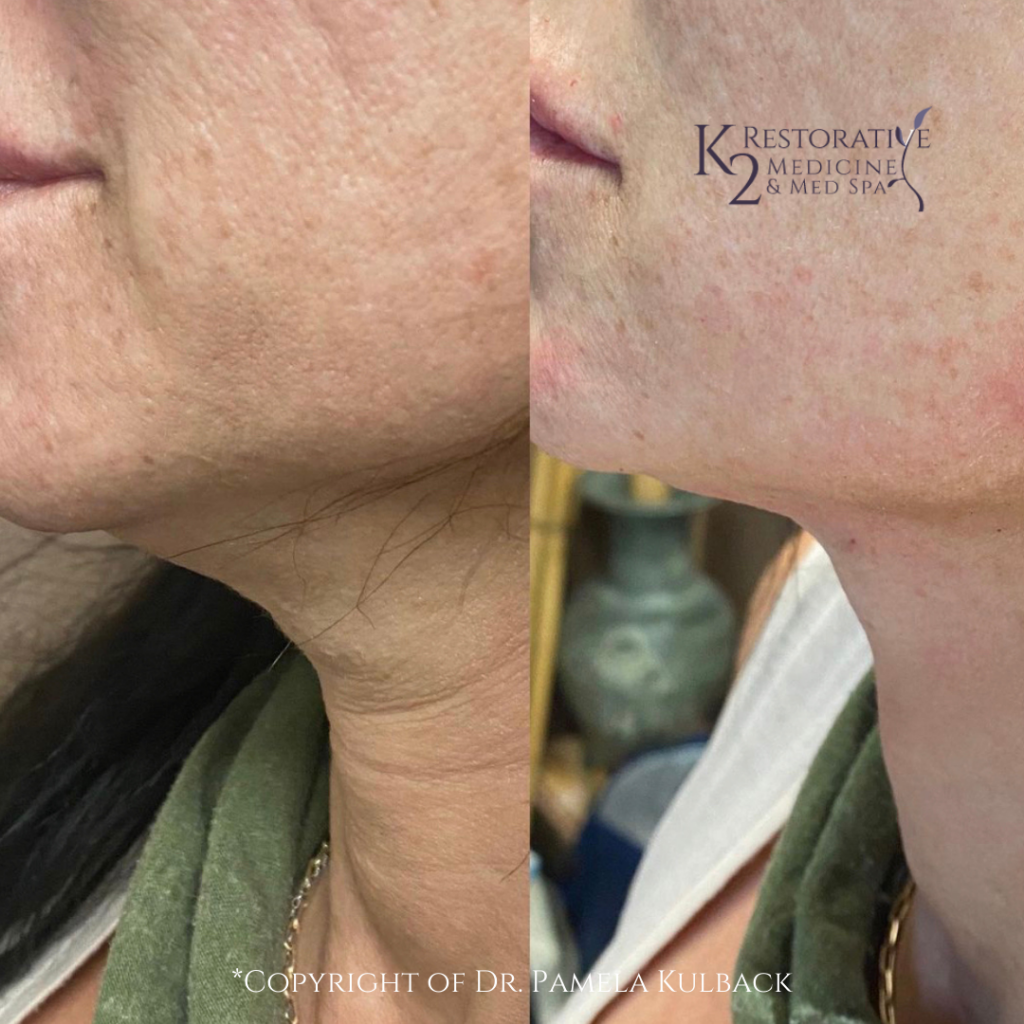 Before and after PDO Thread-Lift of the neck by Dr. Pamela Kulback