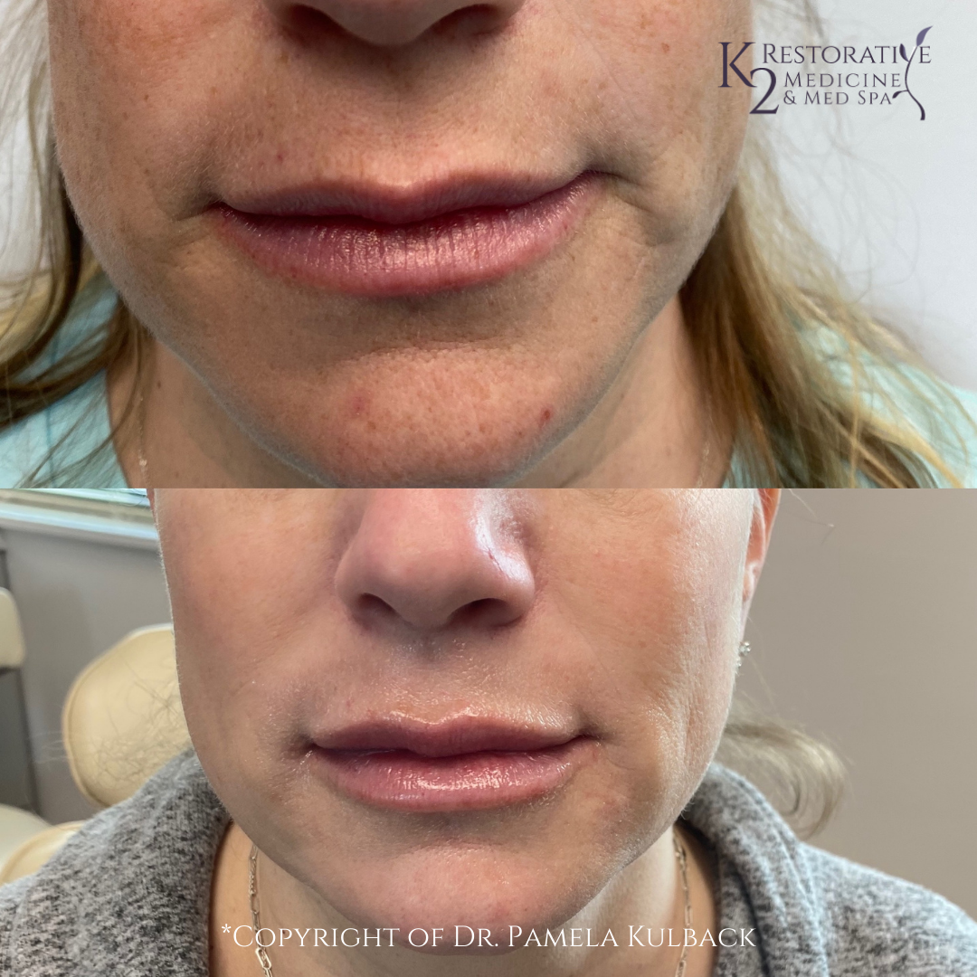Before and after IPL, PDO Threads, 2 syringes of filler for mid face, and lip filler