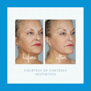 CoolPeel™ Top Skin Resurfacing Laser