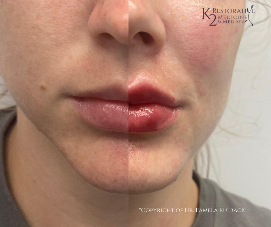 Before & After Restylane Lyft for cheeks - mid face filler