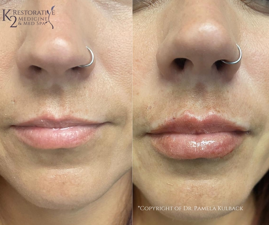Before and immediately after one syringe of Restylane Kysse for added volume and softness