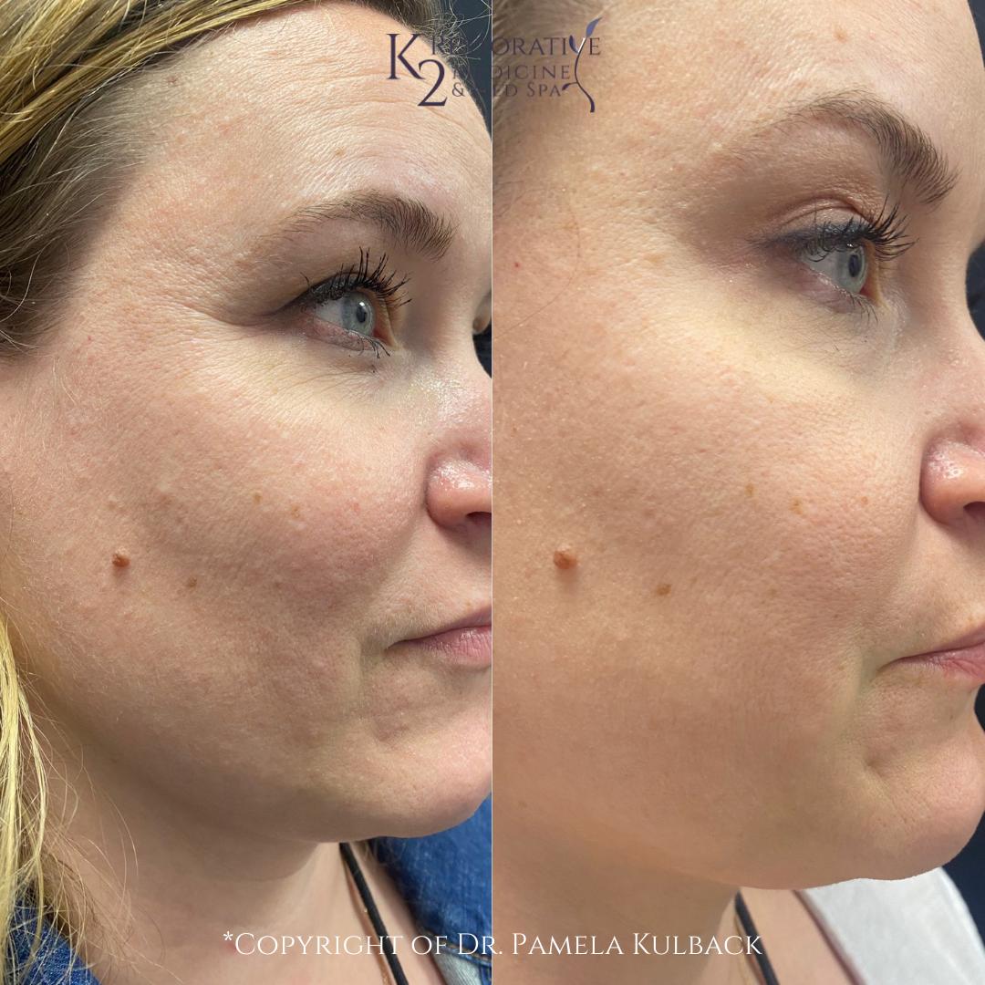 Microneedling Facial Special Offered at K2 Restorative Medicine