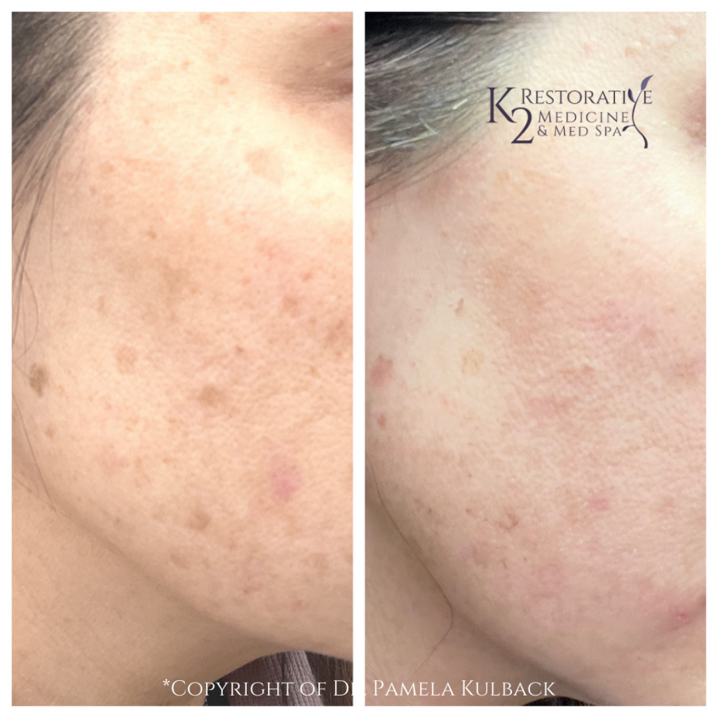 1 HydraFacial with brightening serum Before and After - K2 Restorative Medicine