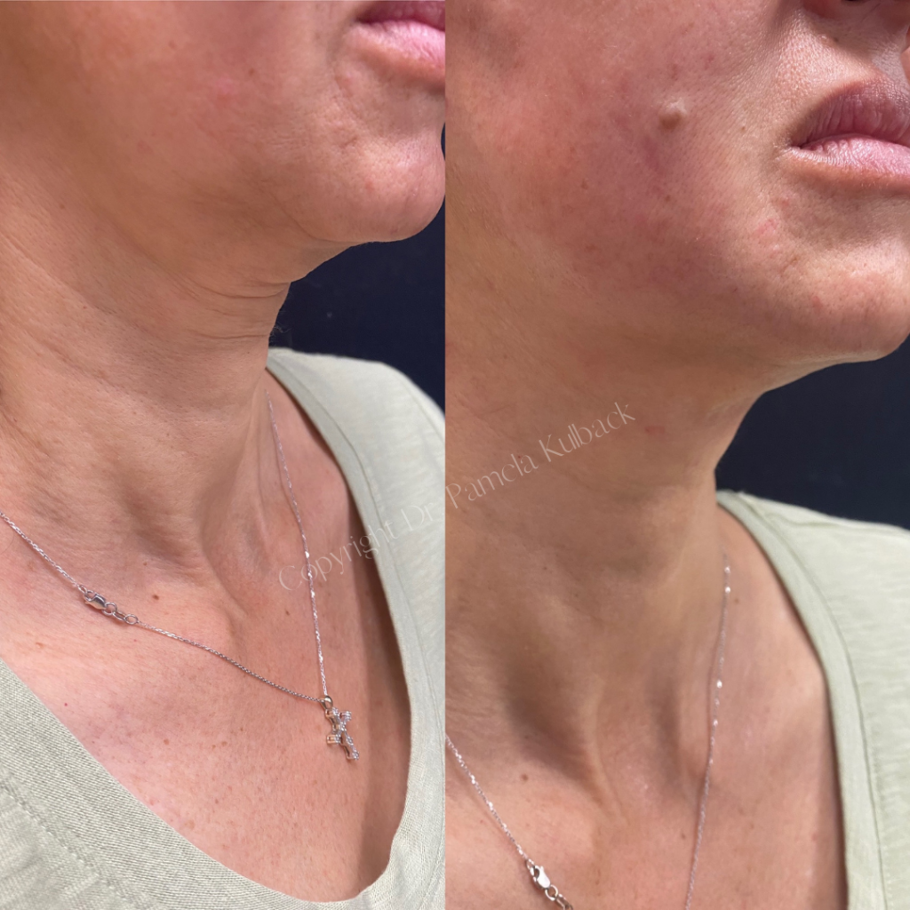 Before and immediately after PDO Thread-Lift to enhance and lift jawline and neck.