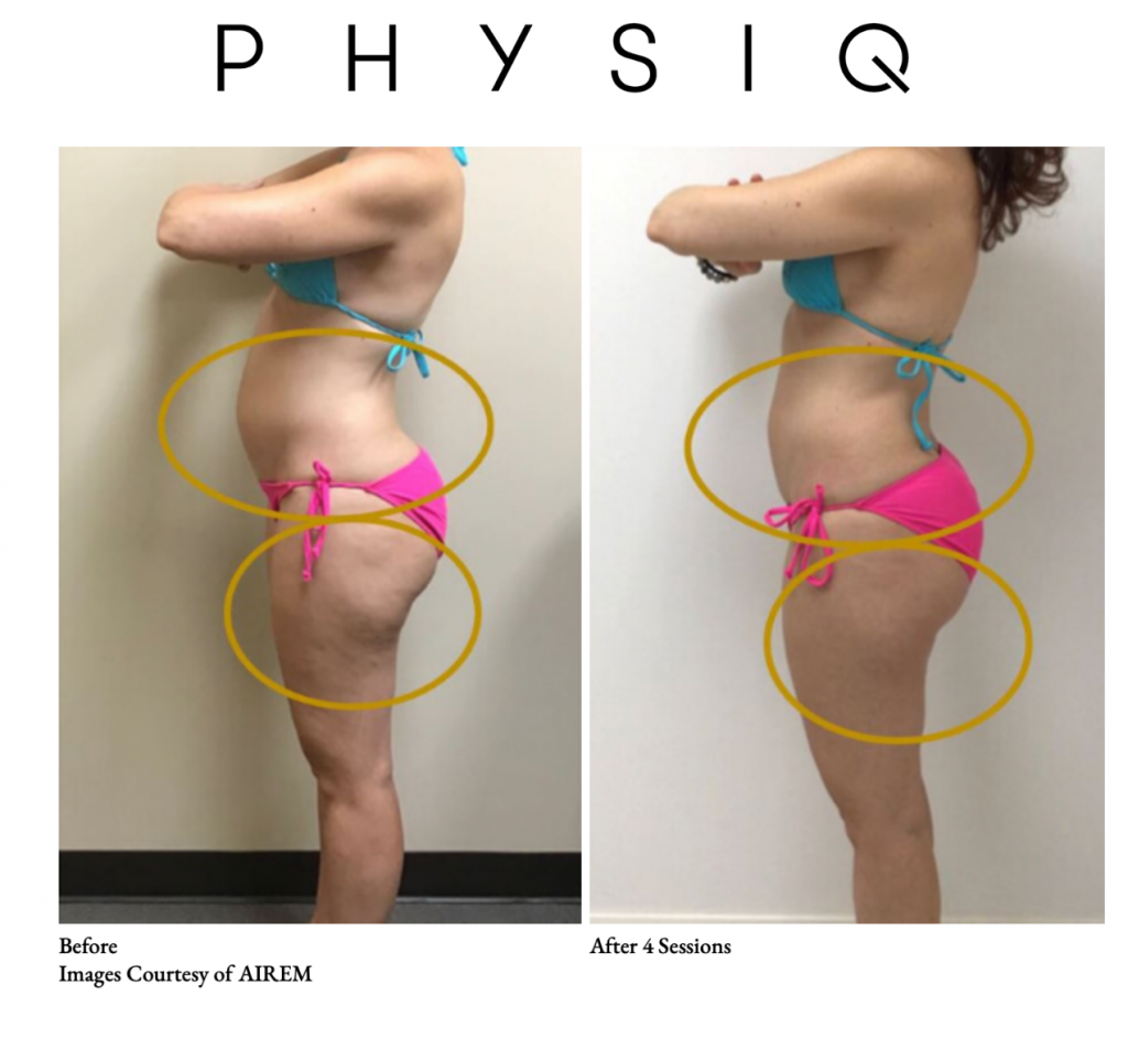 PHYSIQ BEFORE AND AFTER