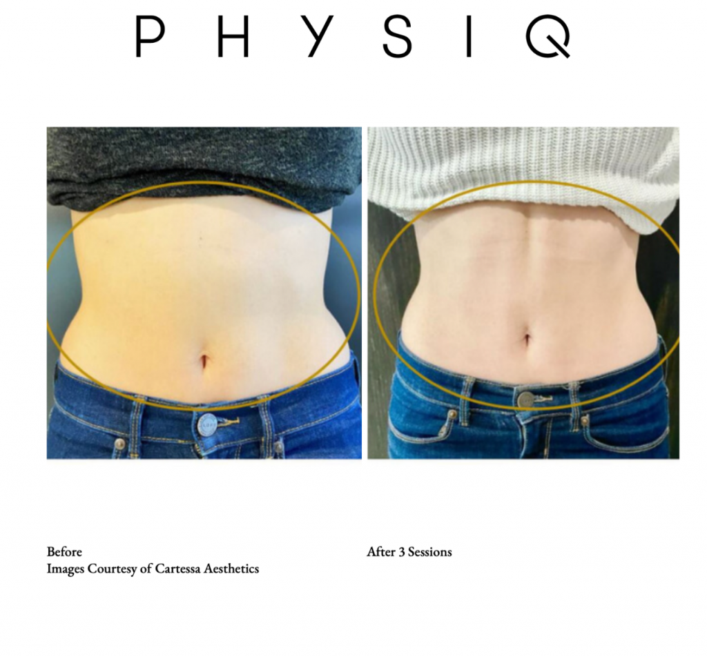 Before and after PHYSIQ
