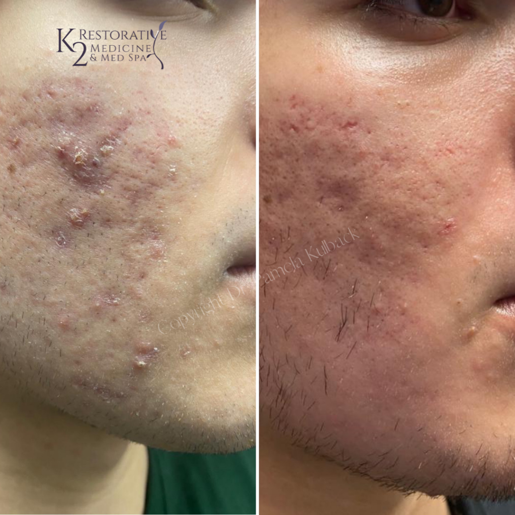 Before & After 3 Fractora Treatments with PRP and custom acne skin care.