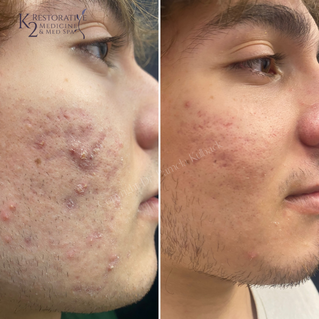 Before & After 4 Fractora Treatments with PRP and custom acne skin care. (2)