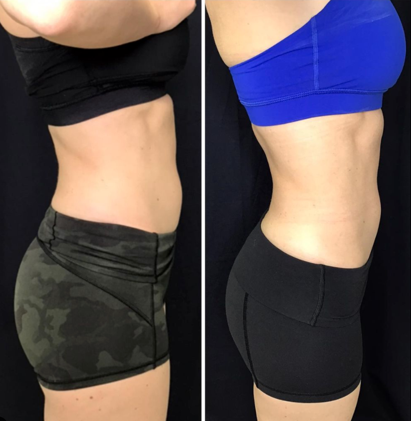 Before and After PHYSIQ body contouring offered now at K2 Restorative Medicine