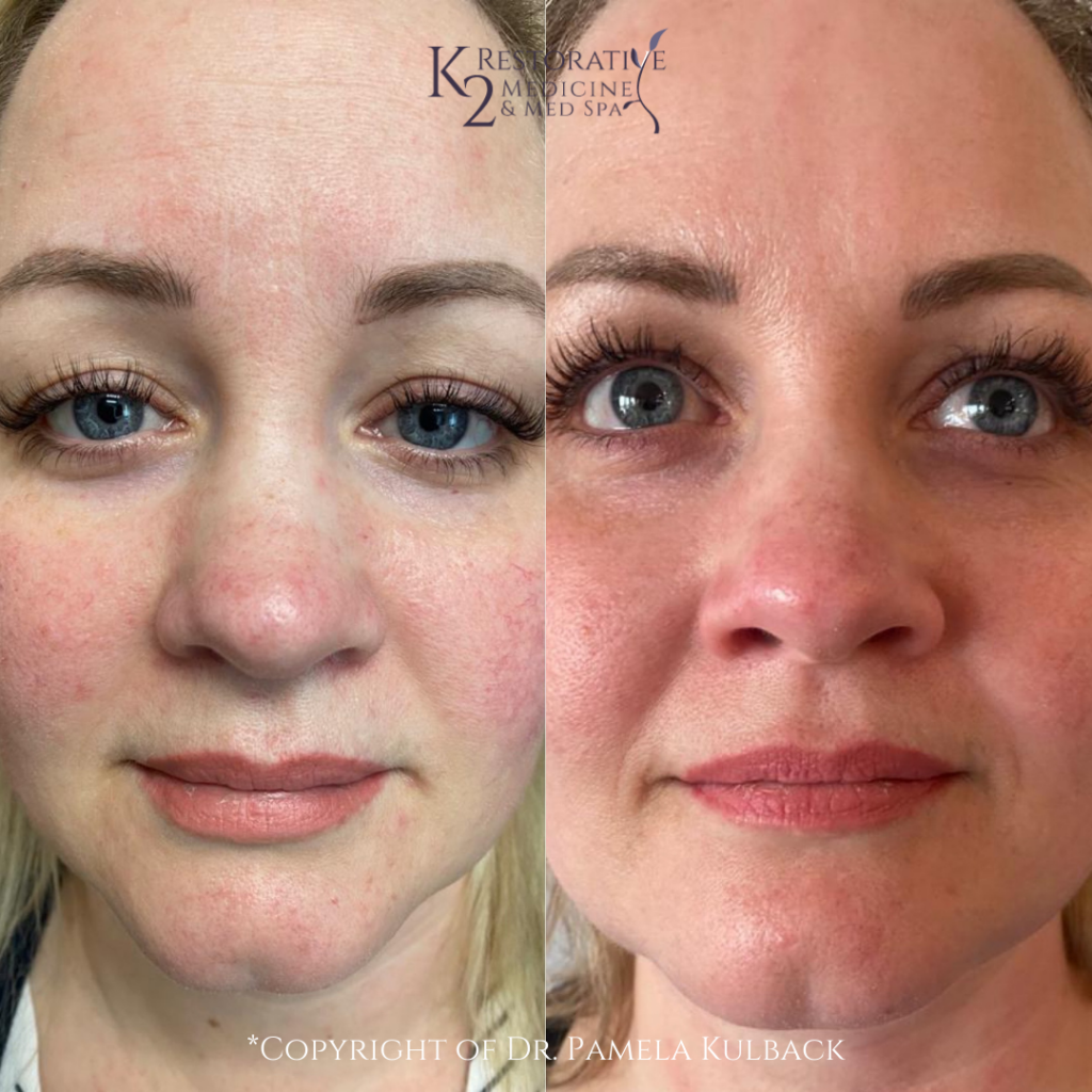 Before and after 2 IPL Treatments to treat Rosacea and broken Blood Vessels performed by Dr. Pamela Kulback.