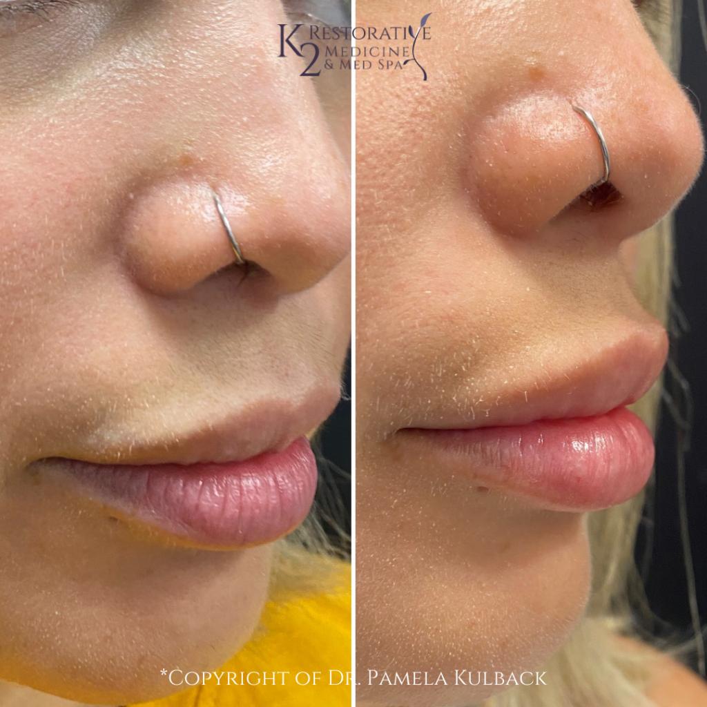 Before and after Restylane KYSSE Lip Filler at K2 Restorative Medicine