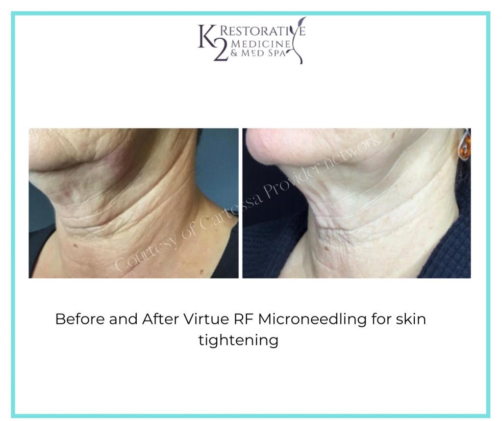 tighten skin with Virtue RF treatments