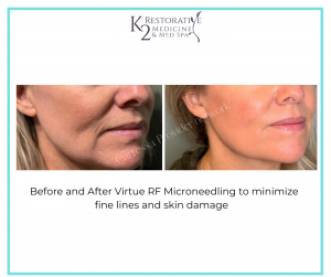 Read more about the article Virtue RF Microneedling Treatment