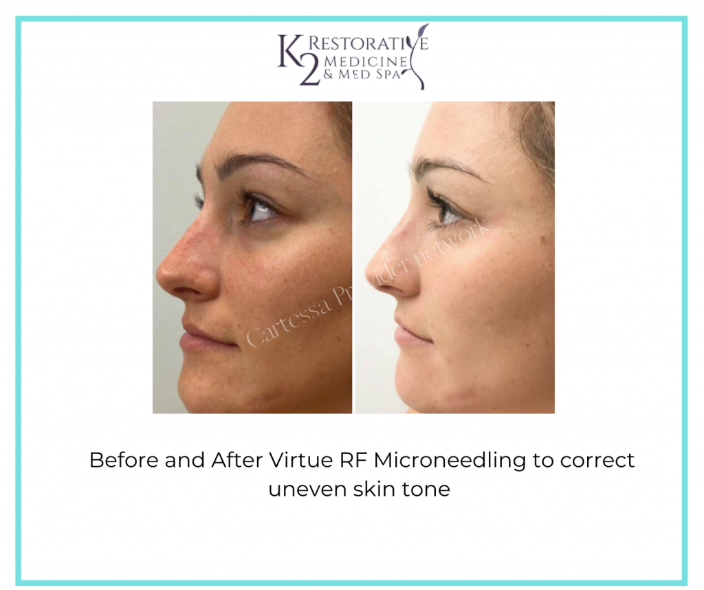 Before and After Virtue RF Microneedling with Dr. Pamela Kulback in Alabama