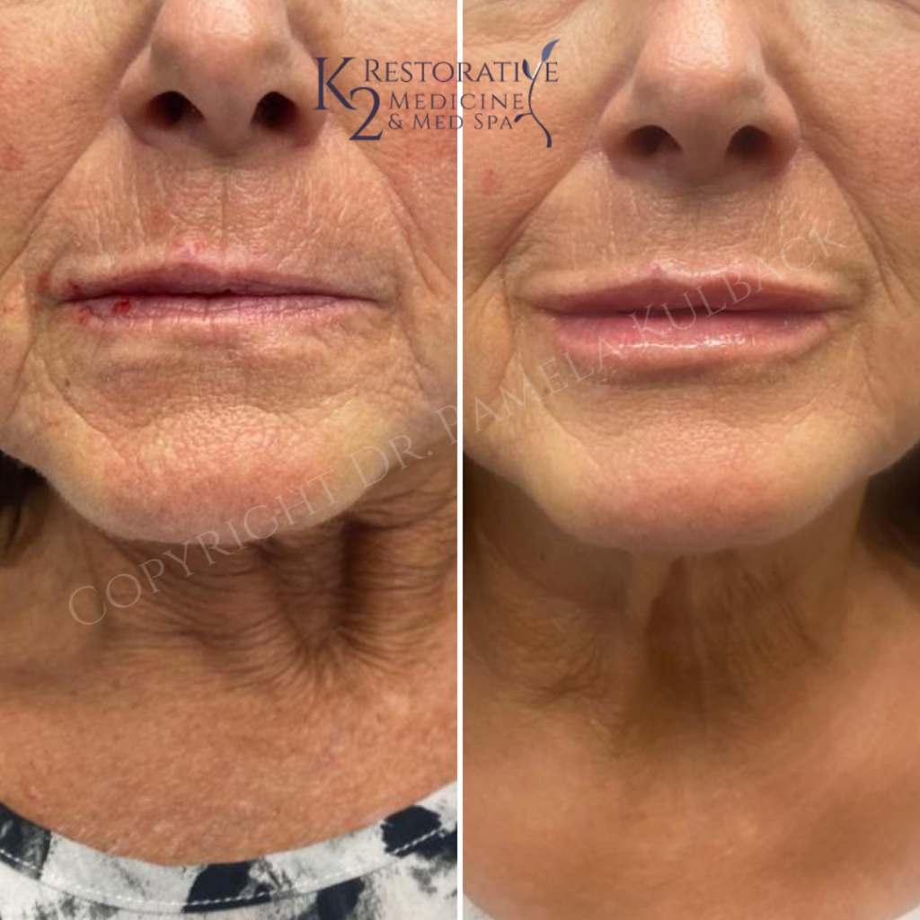 Beginning of treatment, after upper lip correction, & after upper and lower lip sculpting.