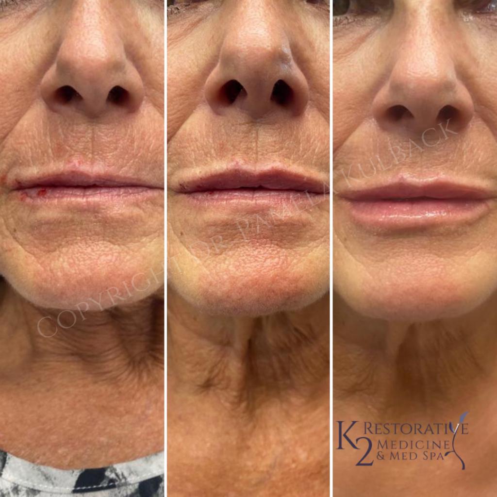 Before and After KYSSE Lip Filler with Dr. Pamela Kulback