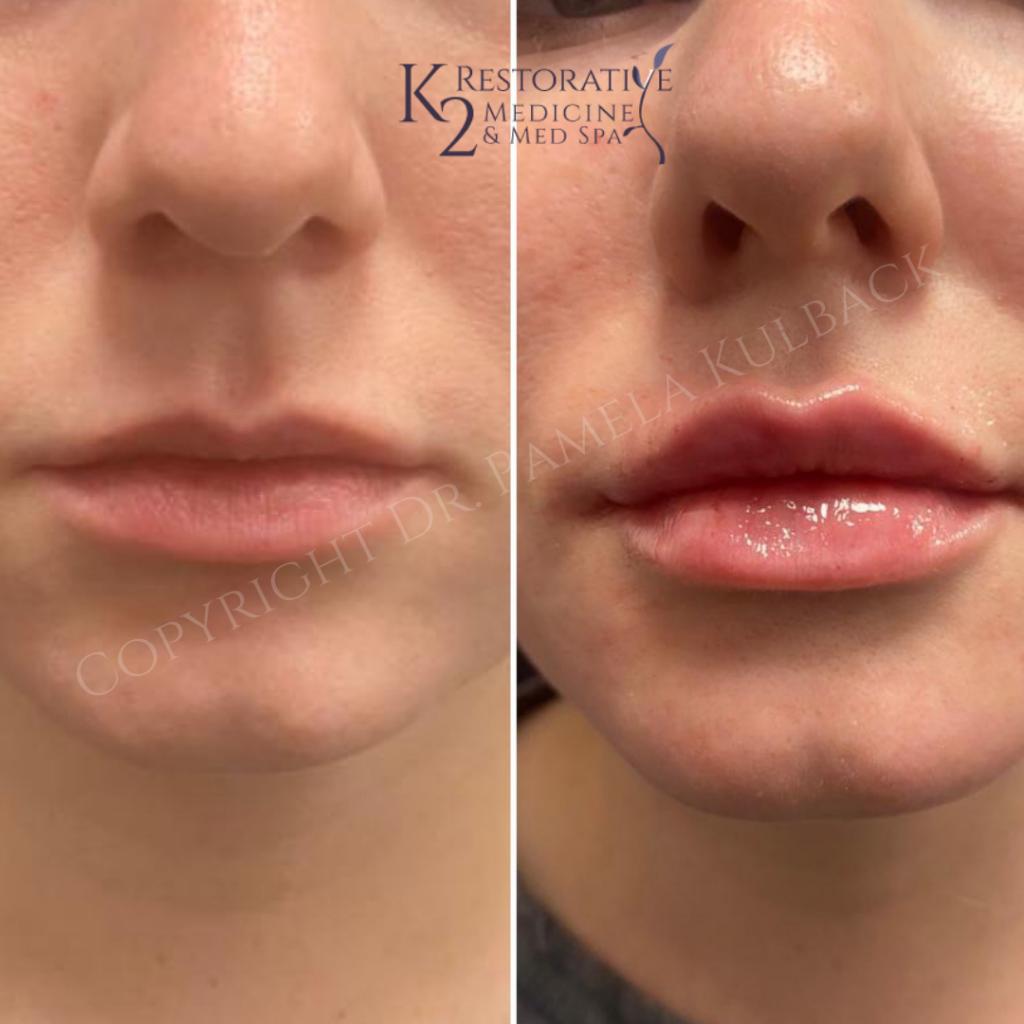 Before and after Versa Lip Filler by Dr. Pamela Kulback