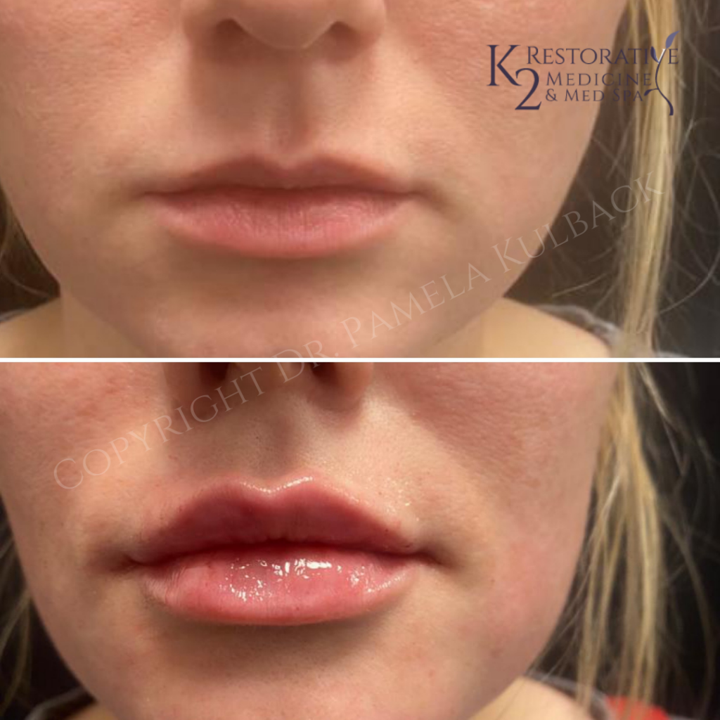 Corrective treatment for asymmetry of lips Image 1 beginning of lip treatment - Image 2 after upper and lower correction and sculpting with KYSSe Lip Filler.