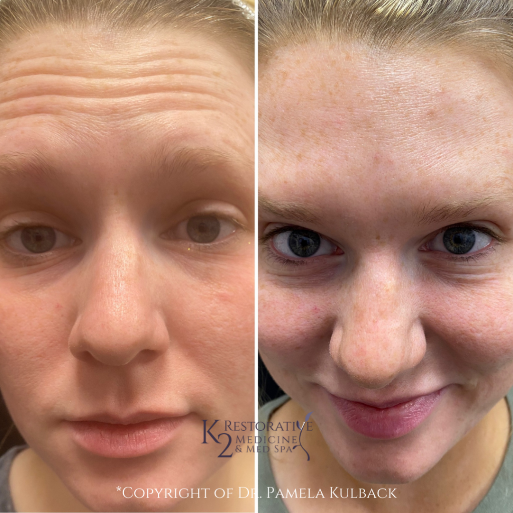 Before and after 2 weeks of Receiving Botox for forehead lines and frown lines by Dr. Pamela Kulback