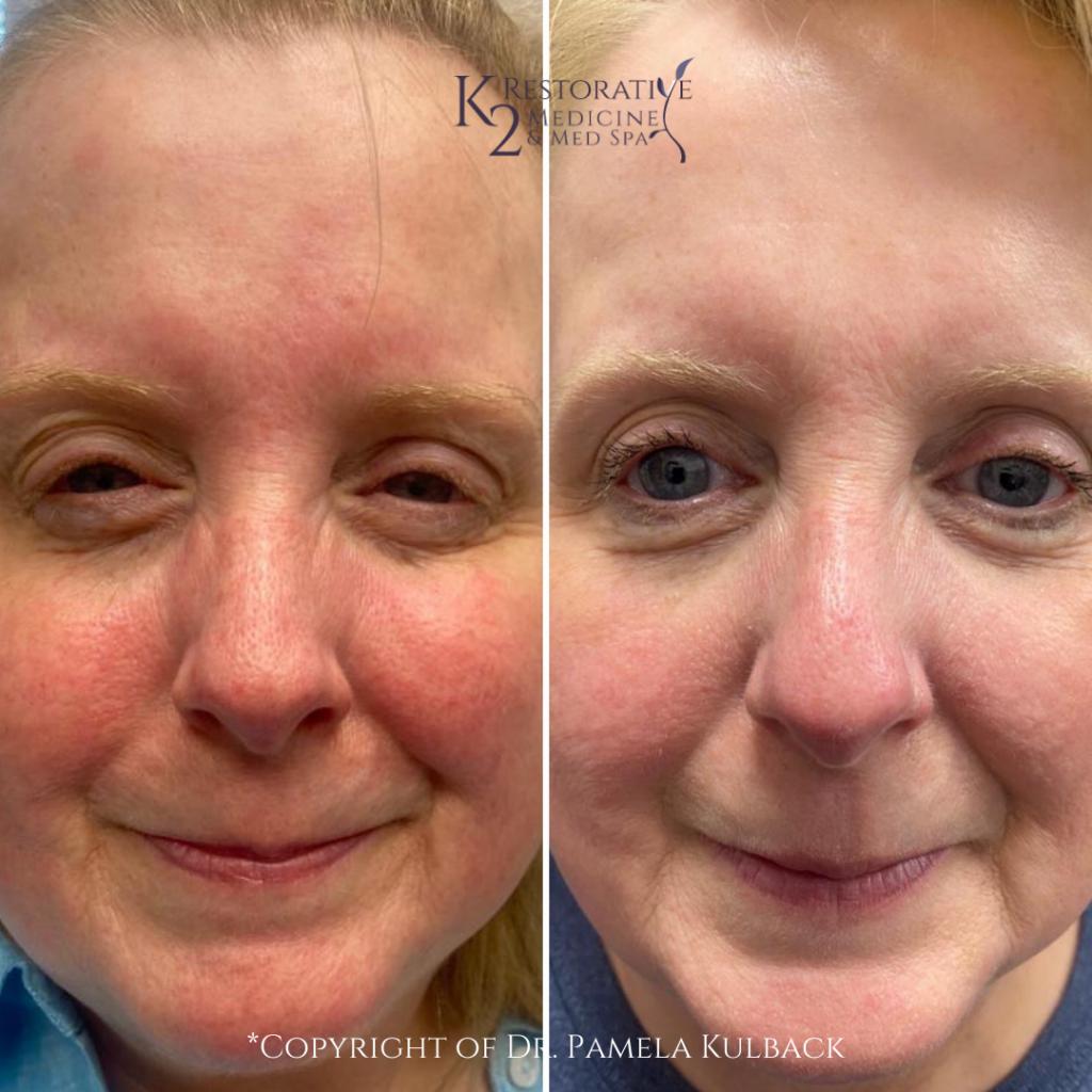Before & after 1 IPL treatment to treat Rosacea, (redness), broken blood vessels, & uneven skin tone