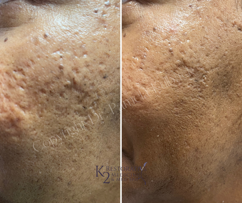 Before and after 3 Acne Scarring Treatments with PDO Threads and PRP (Platelet Rich Plasma) performed by Dr. Pamela Kulback