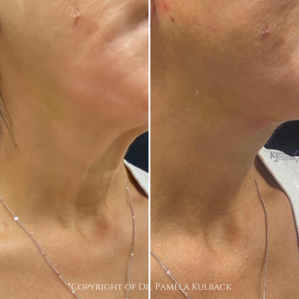 Before and After PDO Thread-Lift of the neck by Dr. Pamela Kulback - K2 Restorative Medicine