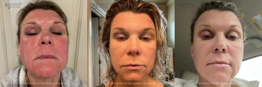 Day 1, 2, & 3 After CoolPeel, PRP, and Morpheus 8 K2 Restorative Medicine