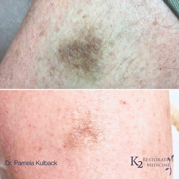 Age Spot Therapy (IPL) - K2 Restorative Medicine