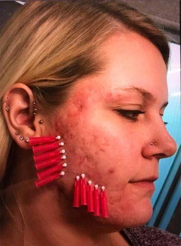 k2-thread-acne1