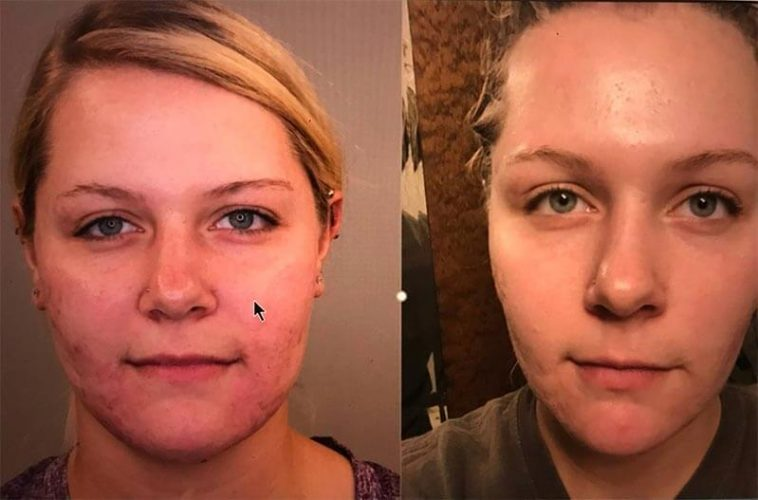before and after pdo threads - acne scars